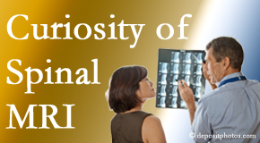 San Jose MRIs for spinal stenosis may be revealing…or confusing.