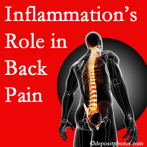 The role of inflammation in San Jose back pain is real. Chiropractic care can help.