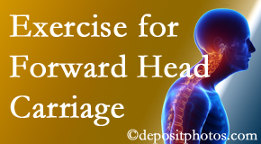 San Jose chiropractic treatment of forward head carriage is two-fold: manipulation and exercise.