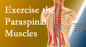 Chiropractic Solutions describes the importance of paraspinal muscles and their strength for San Jose back pain relief.