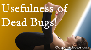 Chiropractic Solutions finds dead bugs quite useful in the healing process of San Jose back pain for many chiropractic patients.