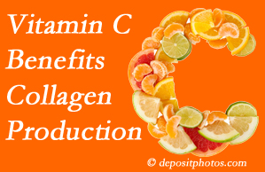 San Jose chiropractic offers tips on nutrition like vitamin C for boosting collagen production that decreases in musculoskeletal conditions.
