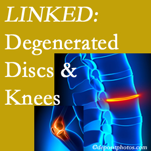 Degenerated discs and degenerated knees are not such strange bedfellows. They are seen to be related. San Jose patients with a loss of disc height due to disc degeneration often also have knee pain related to degeneration.