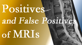 Chiropractic Solutions carefully chooses when and if MRI images are needed to guide the San Jose chiropractic treatment plan.